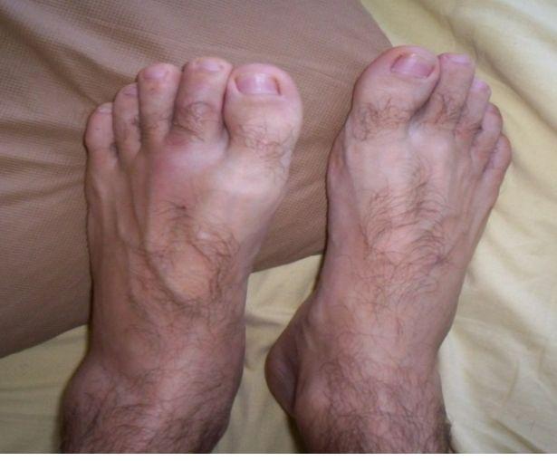 artrita nediferențiată a gleznei
